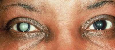 Cataract 1