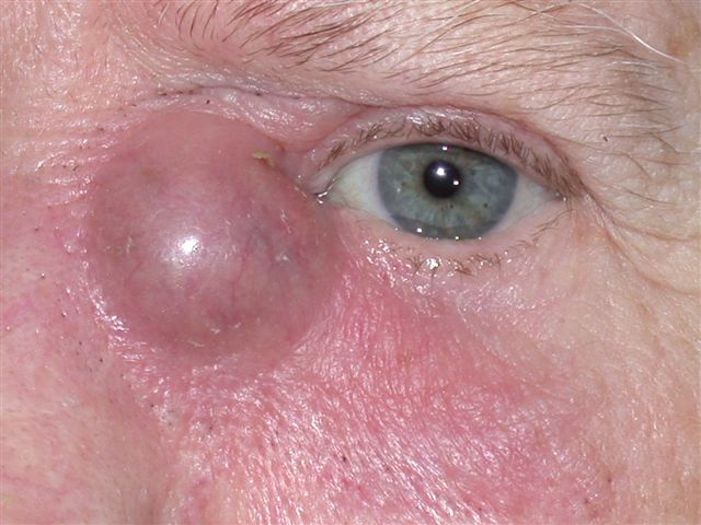 Adult blocked duct in tear