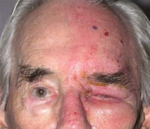 Herpes Zoster   Warwar Eye Group