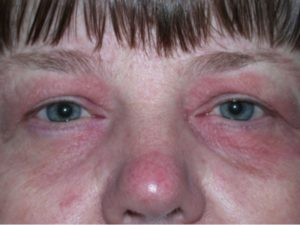 a0dcc6137b9 Left eyelid dermatitis secondary to eczema before and after treatment